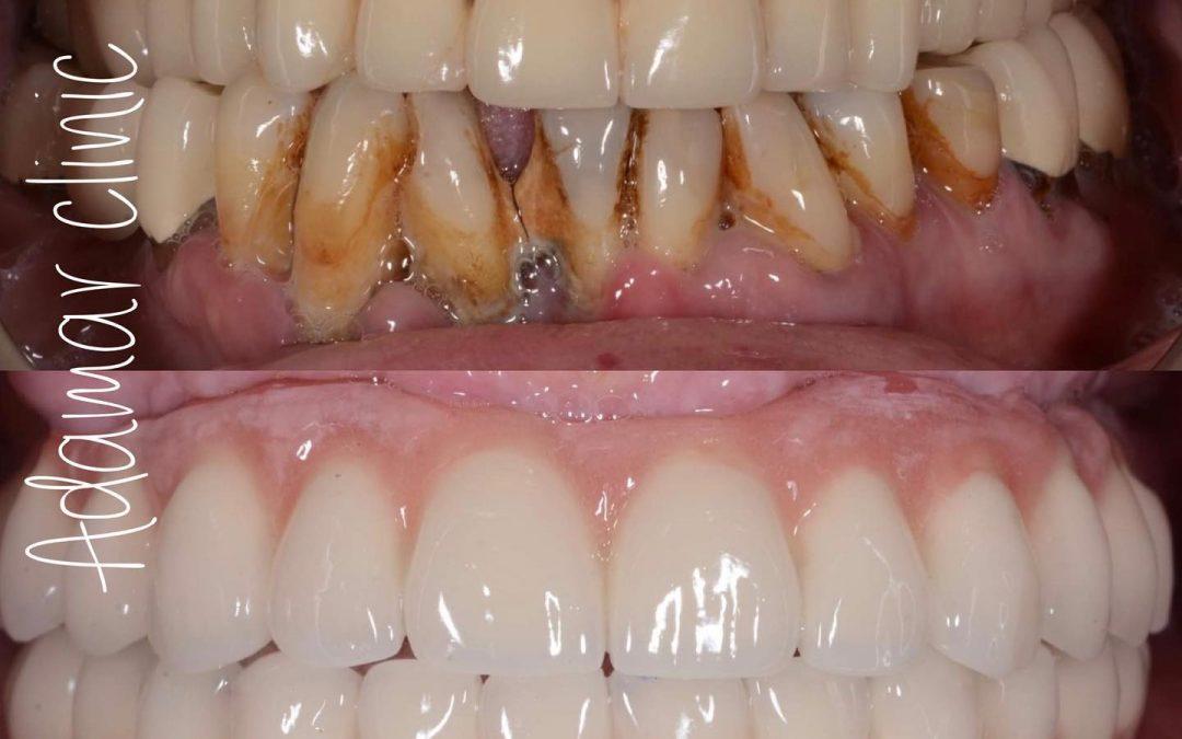 Круті зуби
